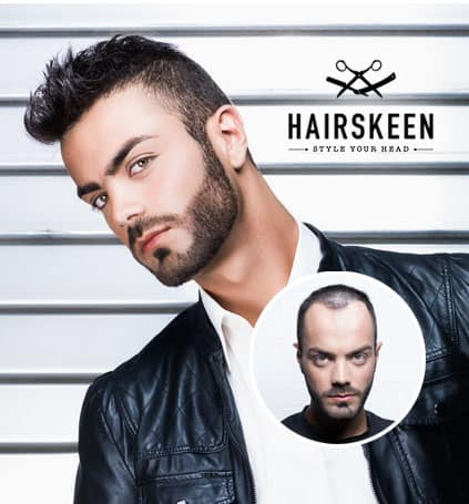 mens hair loss replacement restoration madison wisconsin